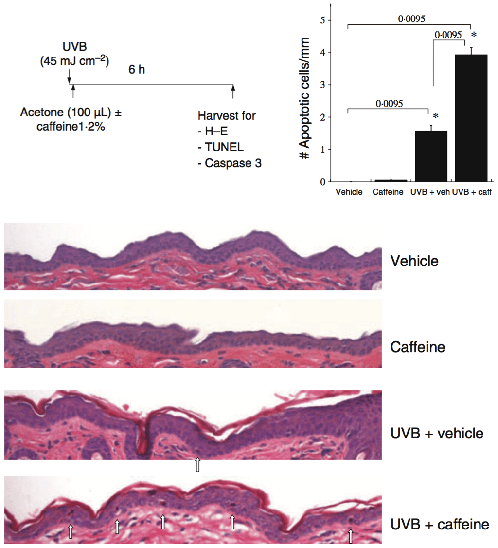 Protection From Photodamage By Topical Application Of Caffeine After Ultraviolet Irradiation